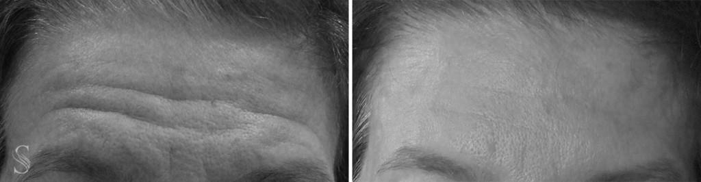 botoks przed i po krakow 1024x266 - PRZED I PO