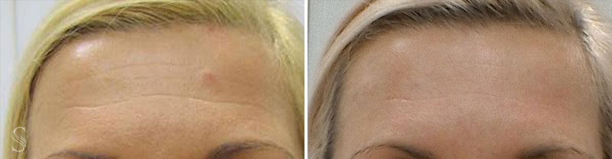 botoks przed i po krakow 2 - PRZED I PO