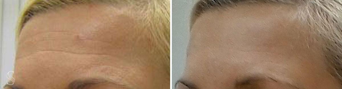 botoks przed i po krakow 3 - PRZED I PO