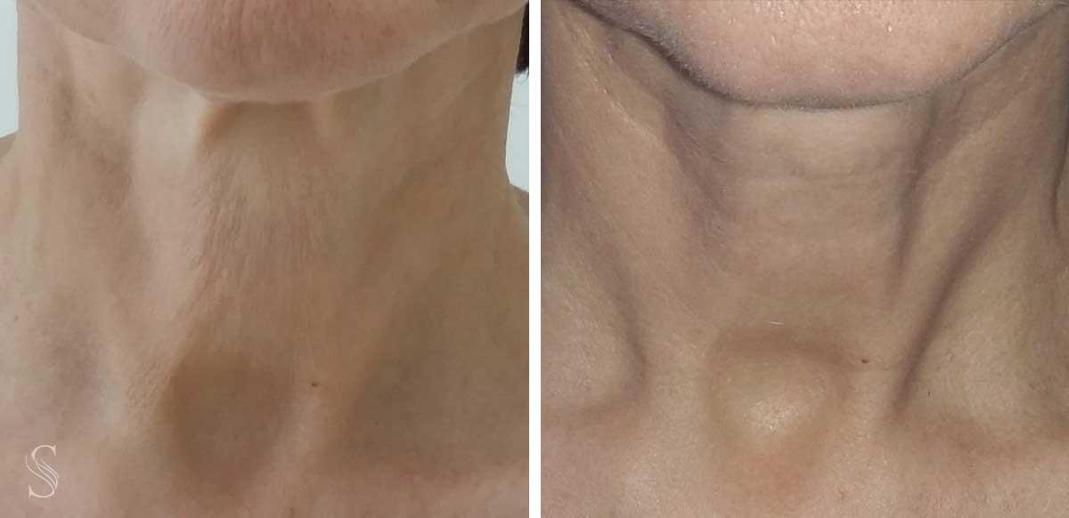 kolagen przed i po - PRZED I PO