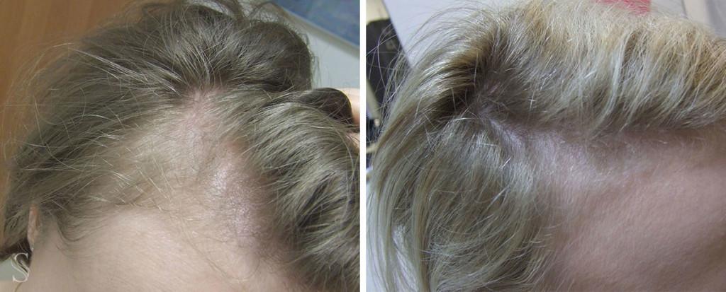 leczenie wypadania wlosow przed i po krakow 1024x413 - PRZED I PO