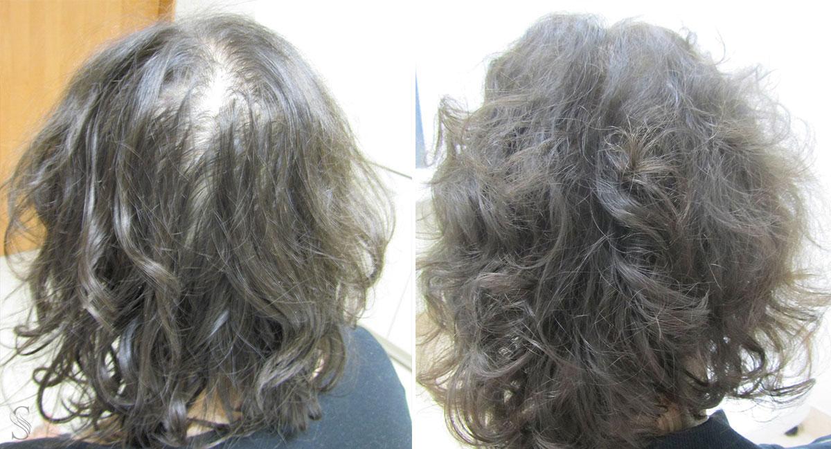 leczenie wypadania wlosow przed i po krakow 2 - PRZED I PO