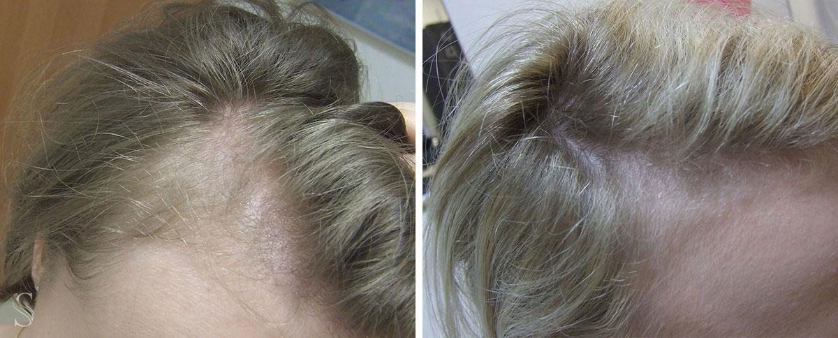 leczenie wypadania wlosow przed i po krakow - PRZED I PO