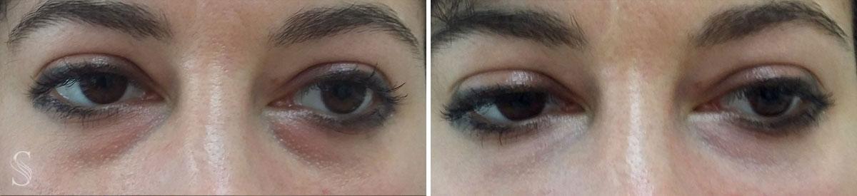 okolice oka przed i po krakow 3 - PRZED I PO