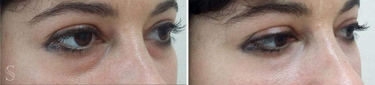 okolice oka przed i po krakow 4 - PRZED I PO