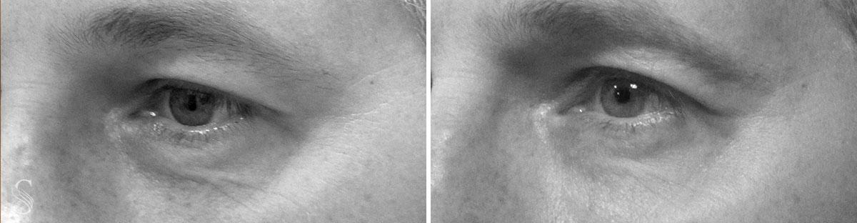 okolice oka przed i po krakow - PRZED I PO