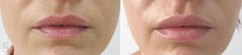 powiekszanie ust przed i po krakow 1024x235 - PRZED I PO