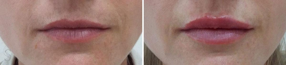 powiekszanie ust przed i po krakow 3 - PRZED I PO