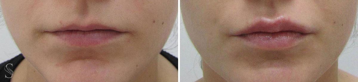powiekszanie ust przed i po krakow 5 - PRZED I PO