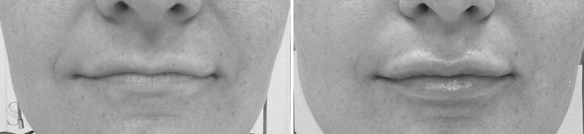 powiekszanie ust przed i po krakow 6 - PRZED I PO