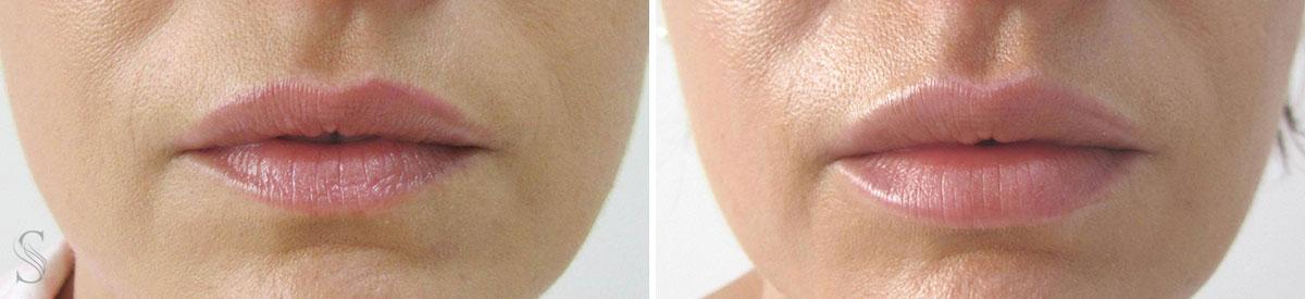 powiekszanie ust przed i po krakow - PRZED I PO