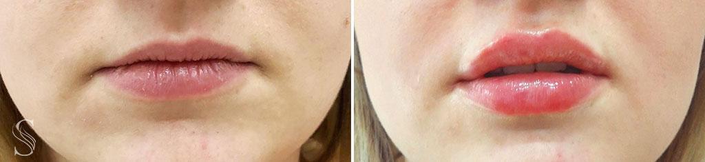 korekta ust krakow przed i po - PRZED I PO