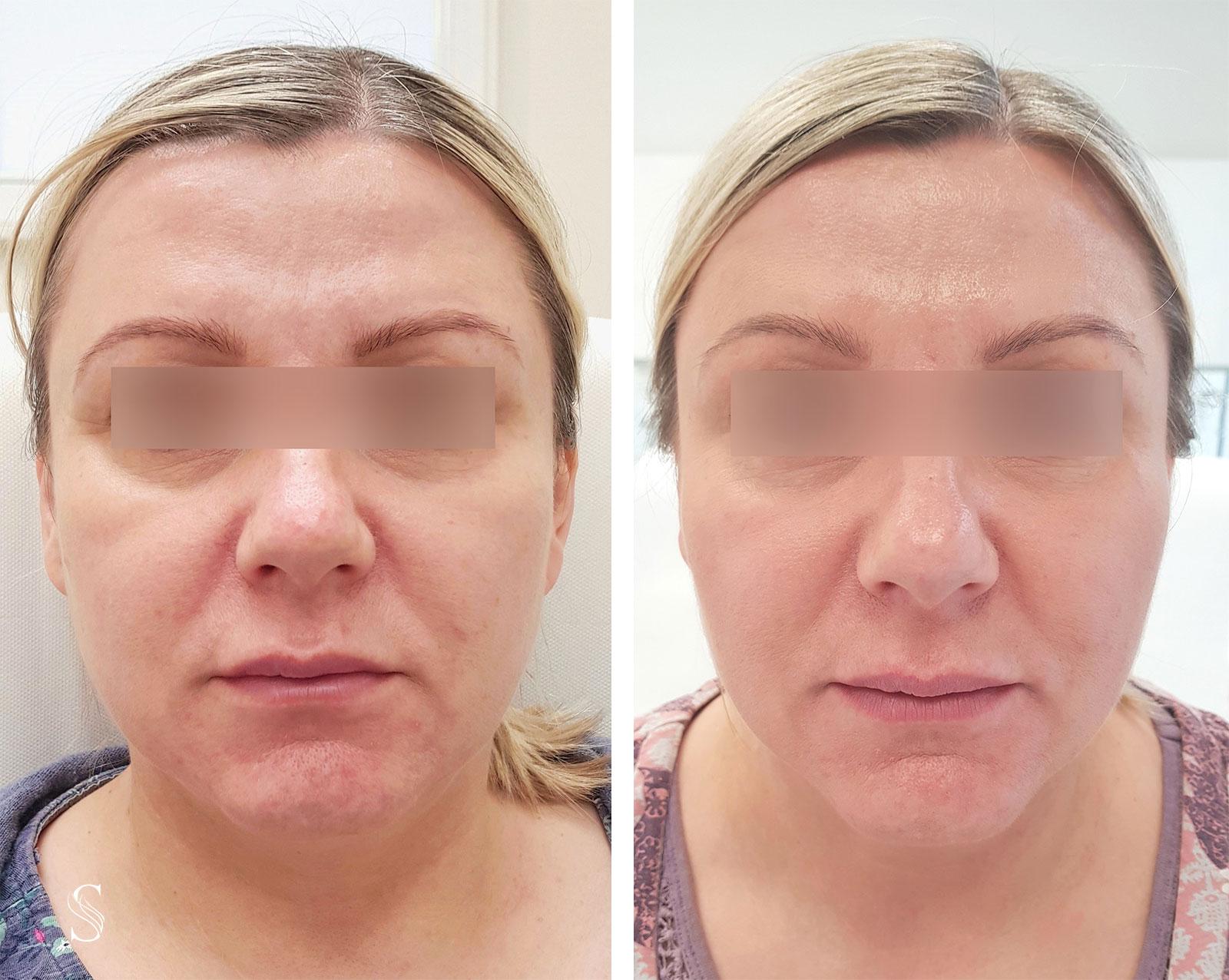 wyszczuplenie twarzy krakow - PRZED I PO