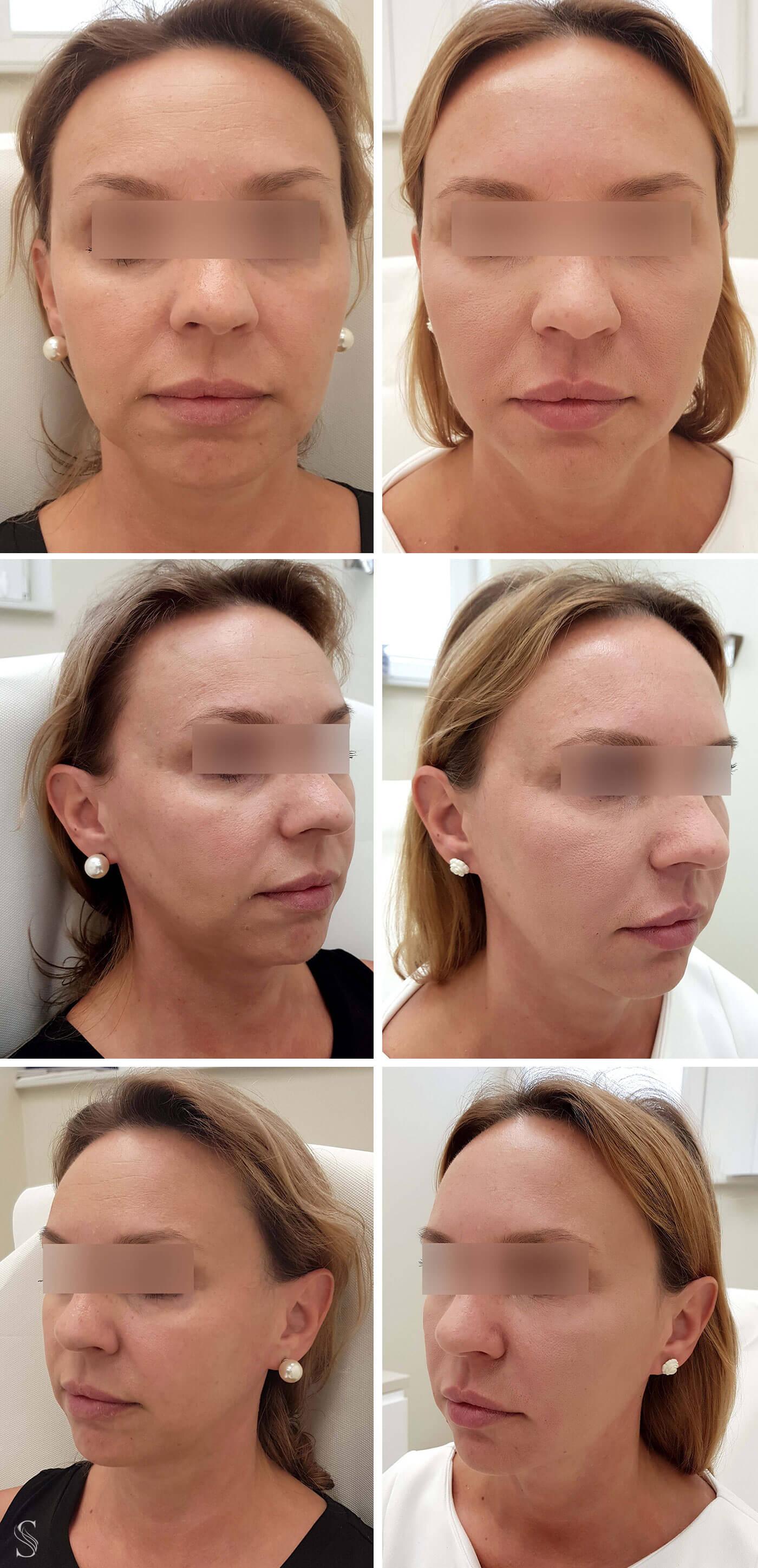 odmladzanie skory twarzy krakow - PRZED I PO