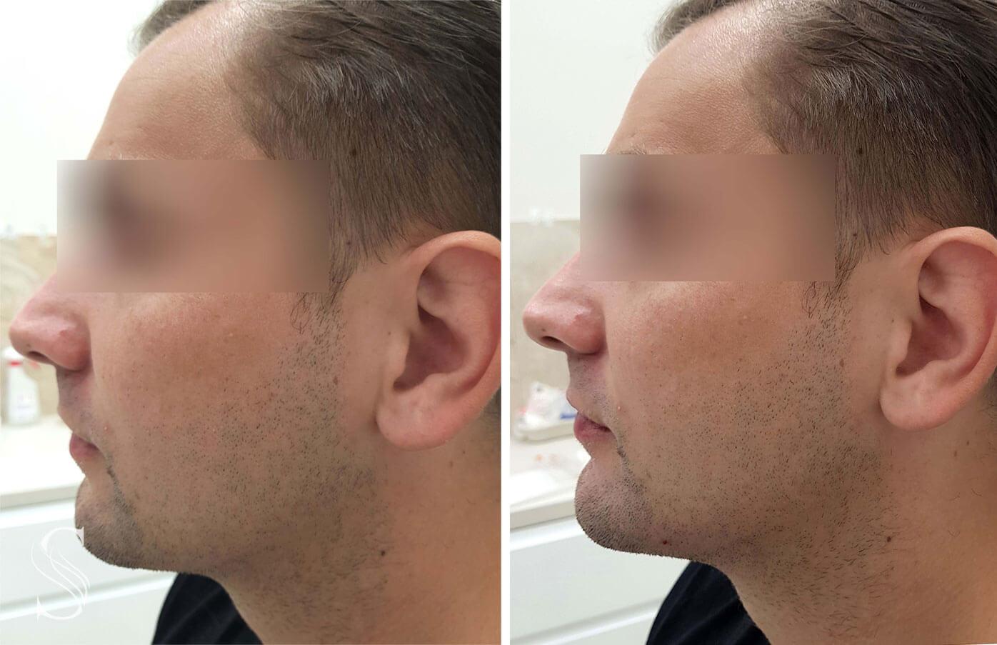 korekcja brody meskiej krakow - PRZED I PO